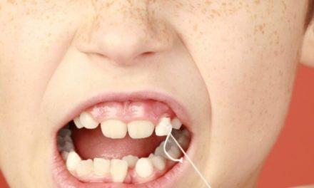 Como cuidar dos dentes de crianças pequenas?