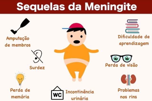 meningite infantil